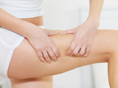 Truth about Cellulite Review – PDF Book Download and FAQ's