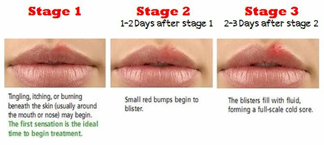stages of UHP